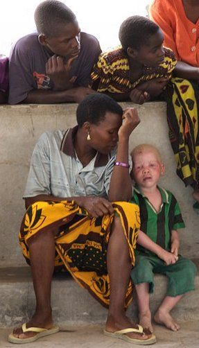 Albino boy in Tanzania